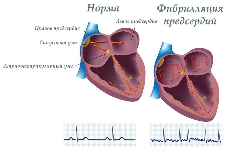 5b62d01506bd8a53b6c4928e25fa9b8a L - Atrial flutter forms, causes, symptoms, diagnosis and treatment